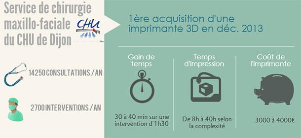 ACTU-impri3D-2014